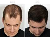 2 years after FUE Hair Transplant by Dr. Benjamin Paul