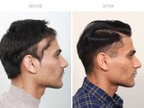 1 year after FUE hair transplant for traction alopecia