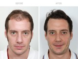 1 year after FUE hair transplant