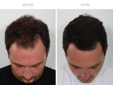 10 Months after FUE Hair Transplant