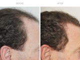 8 months after hair transplant