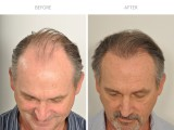 1 year after hair transplant