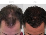 1 Year Post FUE Hair Transplant