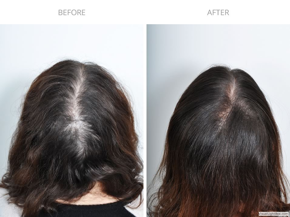 Prp Hair Treatment Before After Photo Gallery Haircaremd Nyc