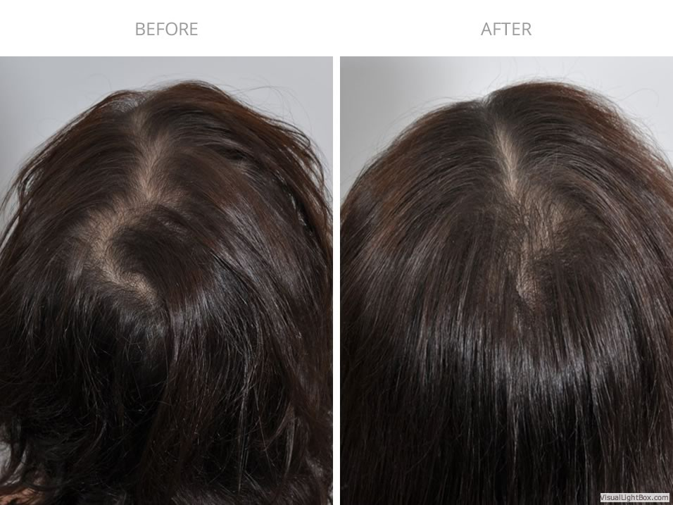 9dbfbc8fe40d PRP Hair Treatment Before/After Photo Gallery | HairCareMD NYC
