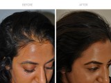 6 months after 2 PRP sessions for female hair loss