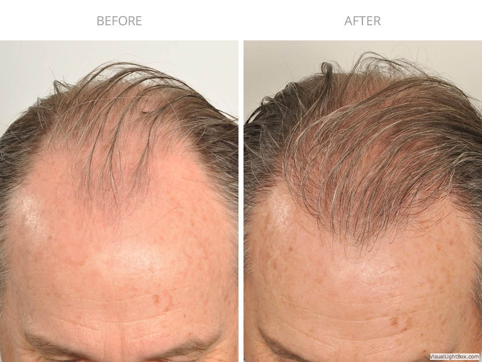 Hair Transplant After 6 Months 1 841 Grafts