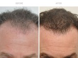 8 months following hair transplant