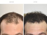 5 months following hair transplant