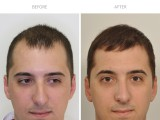 5 months after hair transplant