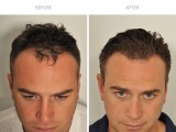7 months after FUE hair transplant