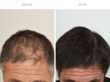 9 Months After Hair Transplant (FUE)