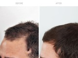9 months after FUE hair transplant