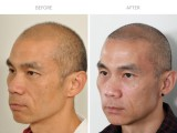 6 months after FUE hair transplant