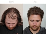 3 after hair transplant