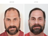 8 Months After FUE Hair Transplant