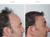 6 months following 2nd hair transplant
