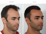 FUE hair transplant was performed to enrich the hairline. Single hairs lead the hairline to create the most natural and most dense result possible.