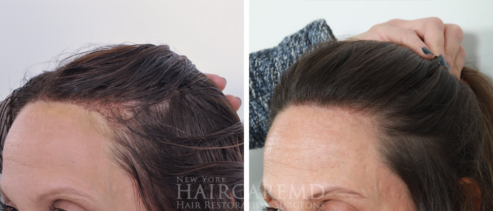 Women Hairline Transplant NYC