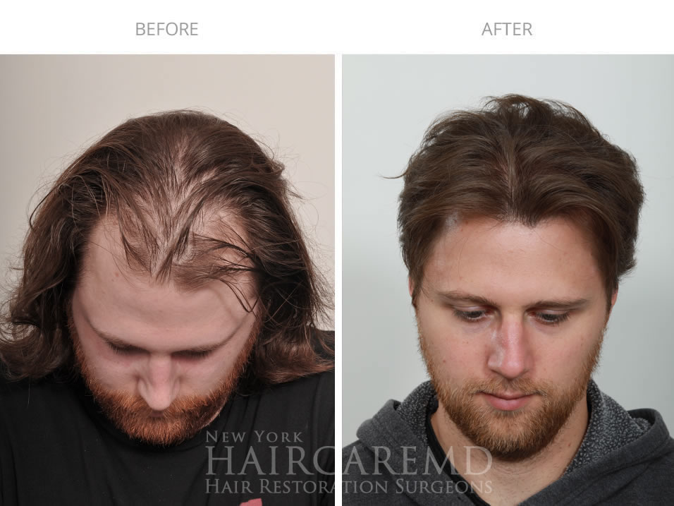3 Year Hair Transplant Results NYC