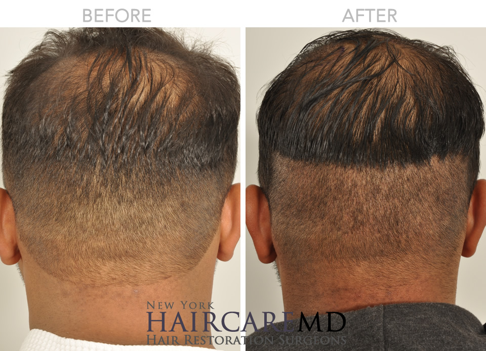 Healing After FUE Follicular Unit Extraction