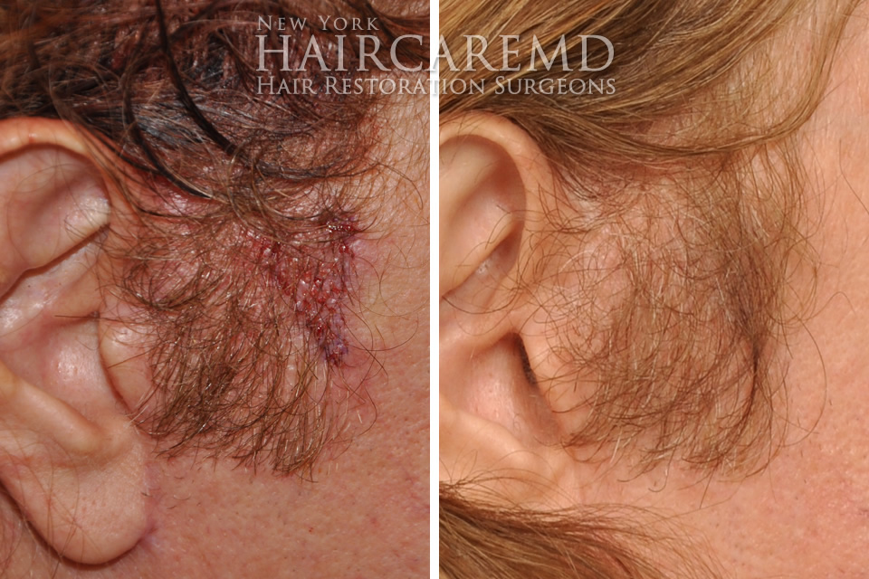 Side Burn Hair Transplant NYC HairCareMD