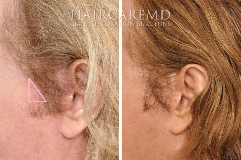 Side Burn Hair Transplant NYC Hair Restoration