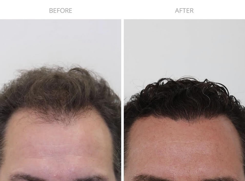 ARTAS Robotic Hair Transplant Before and After Photo