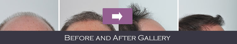 Before and After Hair Transplant NYC