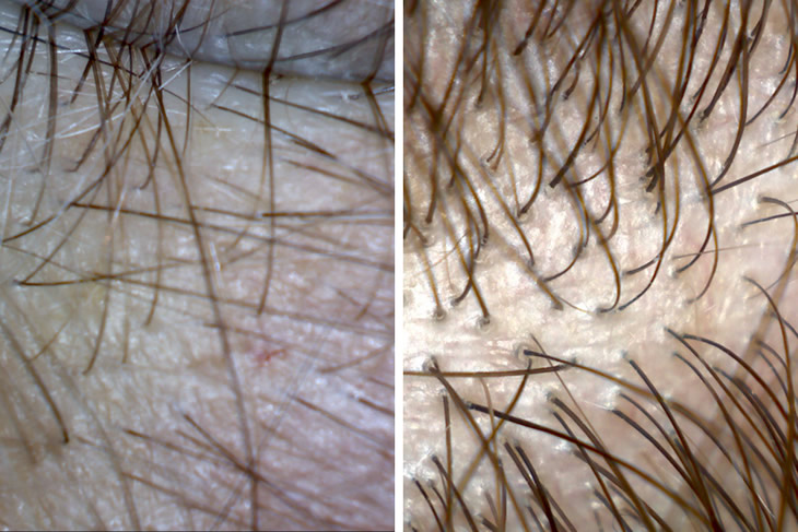 Before and After Transplant Microscopy