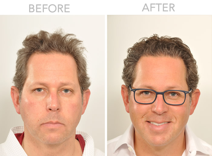 Hair Line Reinforced with Hair Transplant NYC