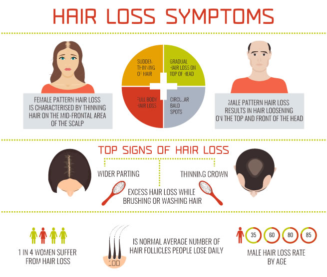 Hair Loss Symtoms New York