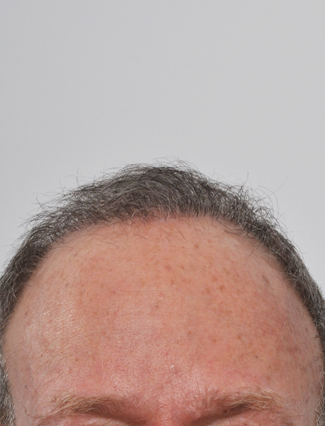 Hair Transplant Specialist NYC After