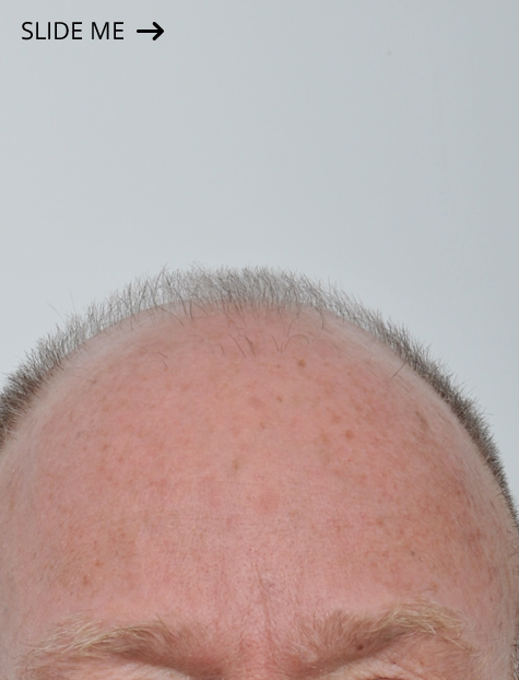Hair Transplant Specialist NYC Before
