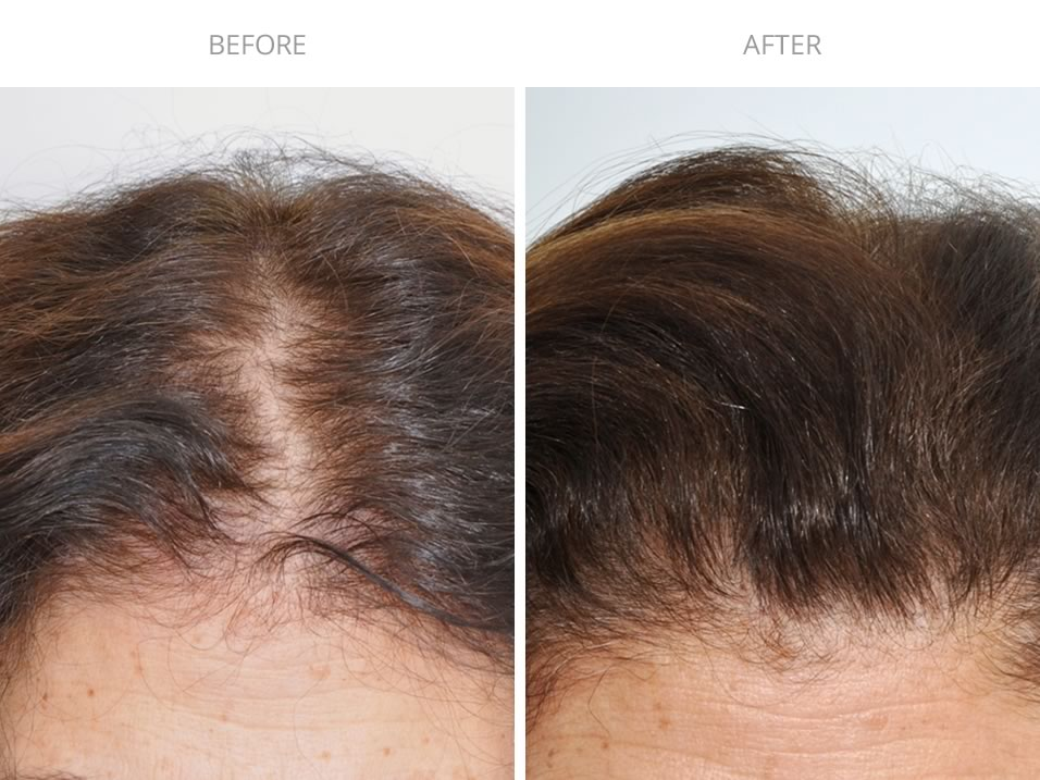 Female Hair Transplant Before and After Photo