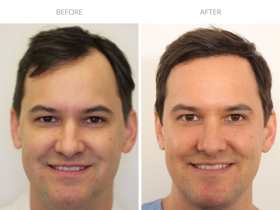 Hair Restoration Before and After Photo