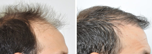 Male Hair Transplant New York