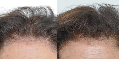 Hair Transplant Specialist NYC