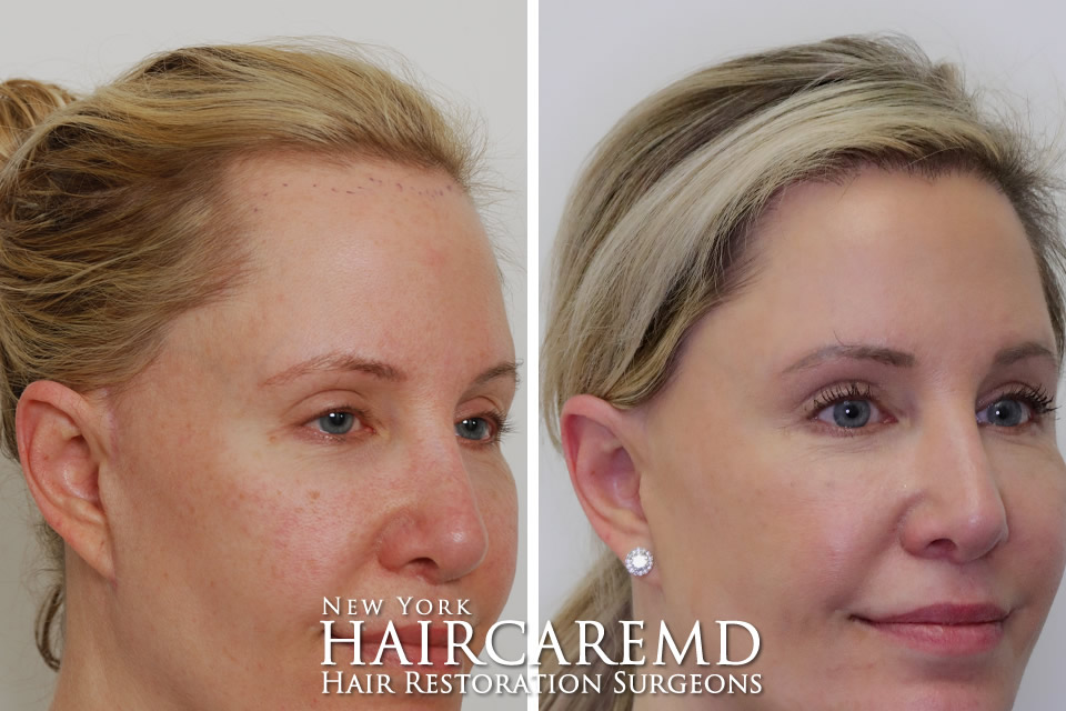 Female Hairline Restoration New York