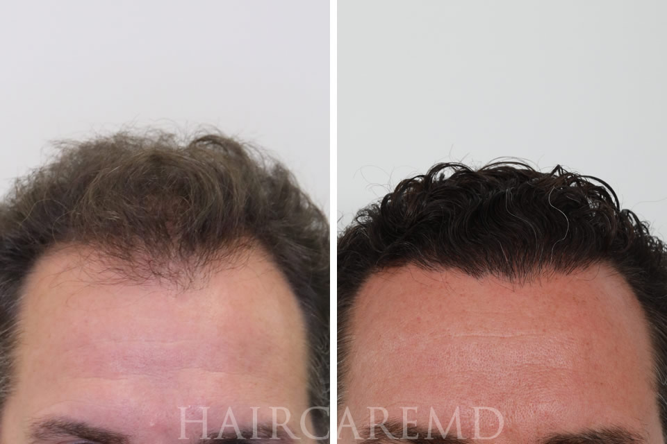 Hair Growth after transplant