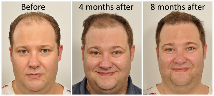 Progression after hair transplant NYC