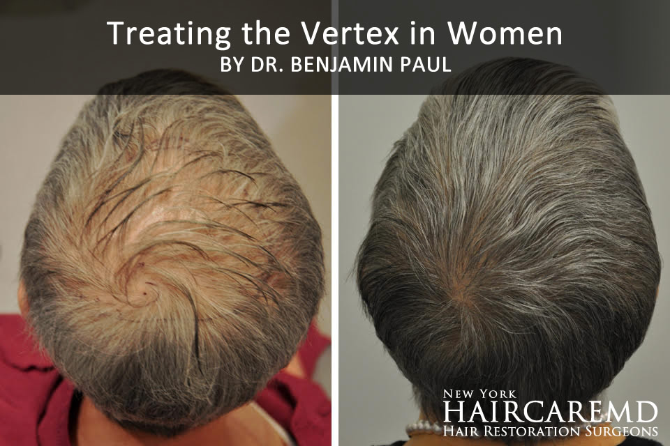 Treating The Vertex in Women