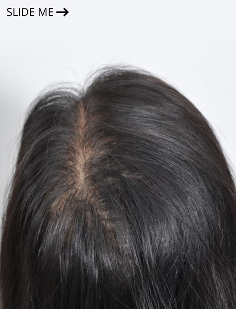 After Platelet Rich Plasma PRP Hair Loss Doctors New York