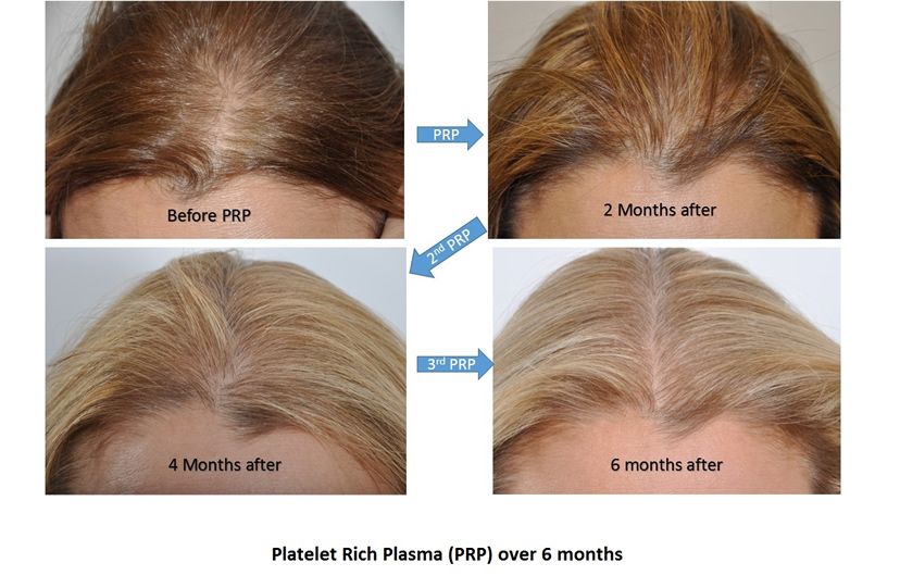 PRP Image Before and After
