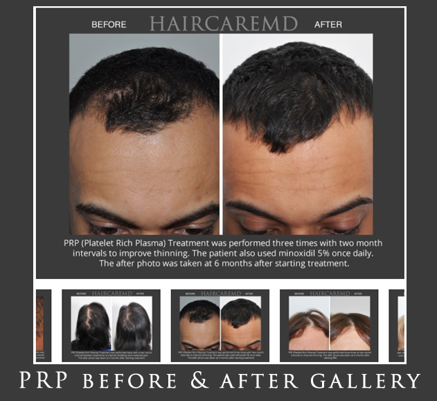 PRP Hair Restoration Gallery New York City
