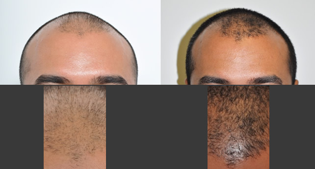 Hair Restoration with PRP Manhattan NYC
