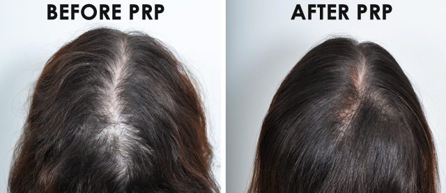 Non Surgical PRP Hair Loss Treatment NYC