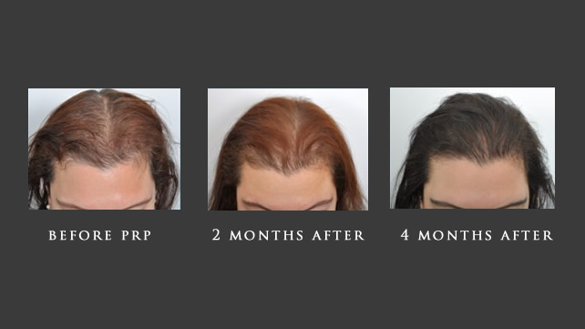 Hair Restoration with PRP New York
