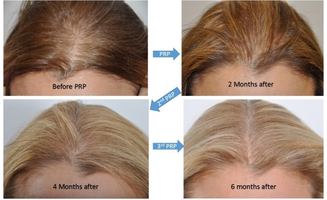 PRP for Hair by Dr. Benjamin Paul